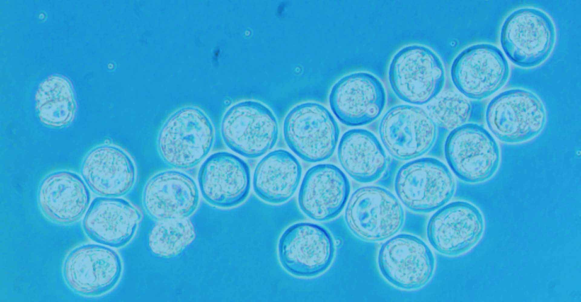 Blastocysts ready for Injection by PolyGene
